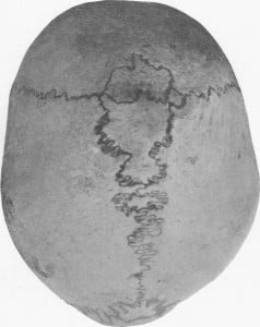 Das Inkabein. Photo Credit: E. Barclay-Smith: A Rare Condition of Wormian Ossifications. J Anat Physiol , 277–278 (1909)